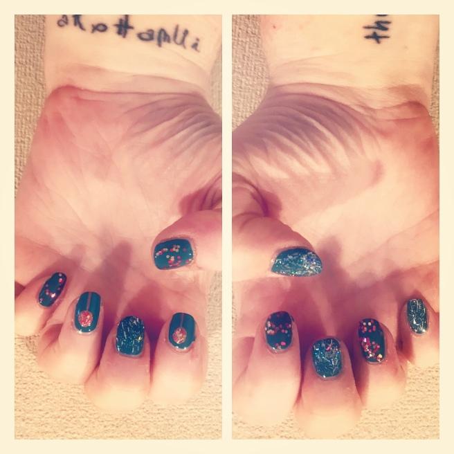 Xmas nail art. Glitter baubles on green base