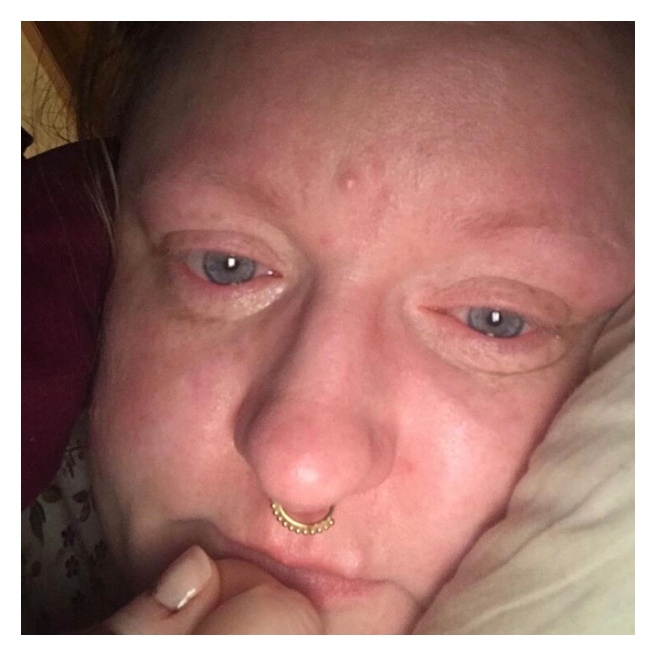 Woman in bed with teary eyes