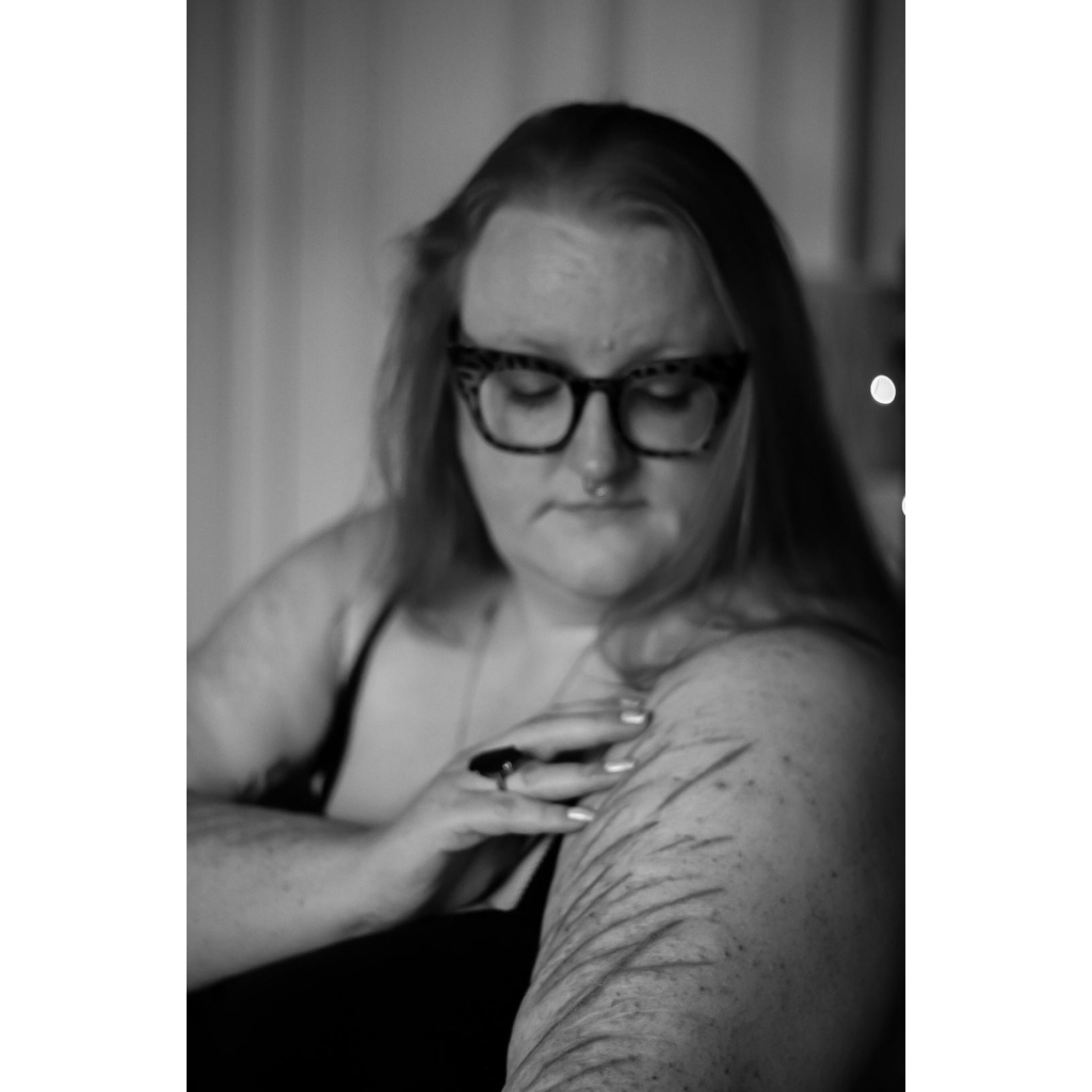 Black and white photo oh plus size woman looking at scarred arm